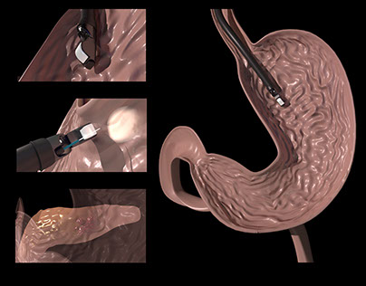 3D Model of the Stomach and Pancreas