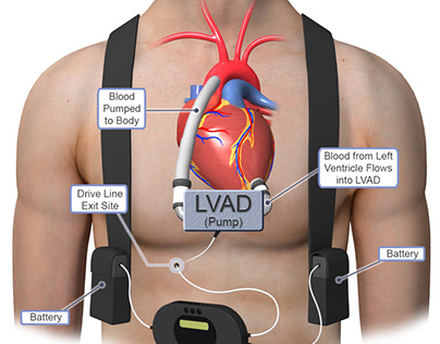 Coronary Bypass Surgery East Bay CA
