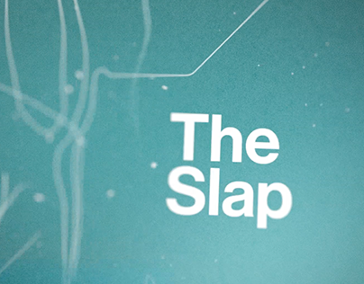 NBC - The Slap
