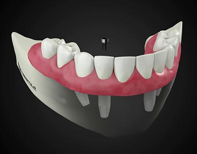 Freesmile - 3D animation