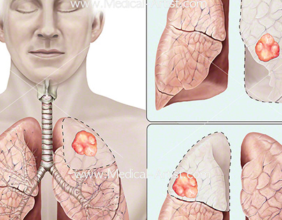 Respiratory anatomy illustration