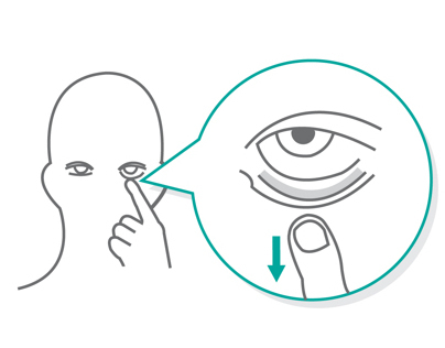Eye Medicine Visual Instruction