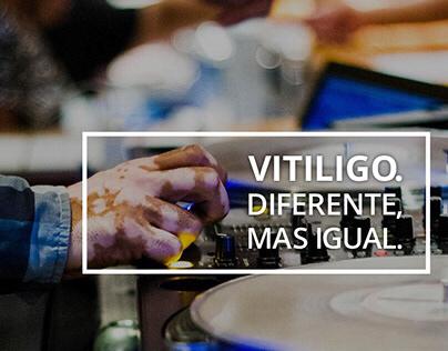 Vitiligo. Diferente, mas igual.
