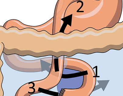 Bariatric Surgery Techniques