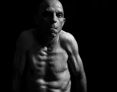 Men's breast cancer