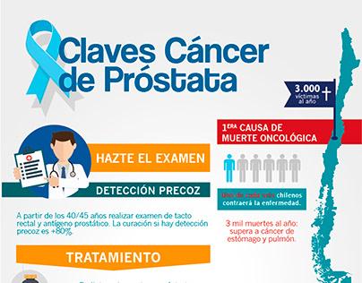 leche muscular y cáncer de próstata
