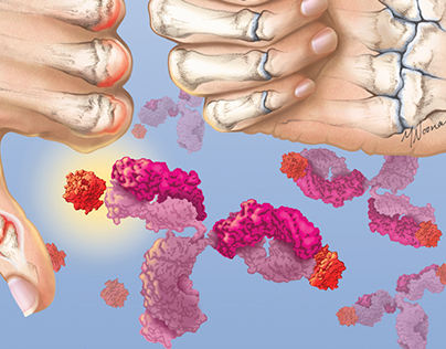 Humira for the treatment of rheumatoid arthritis