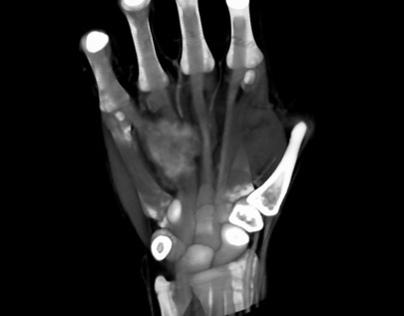 Evaluación Radiológica de Mano