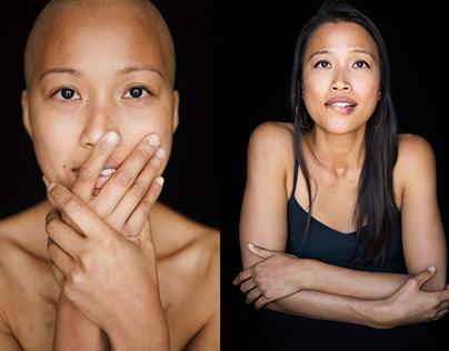 Facing Chemo