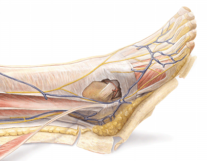 The Dissected Lateral Leg
