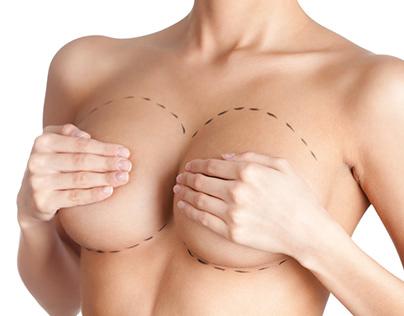 Artigo - Como funciona a mamoplastia para aumentar...