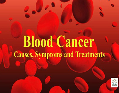 BLOOD CANCER : CAUSES, SYMPTOMS AND TREATMENT