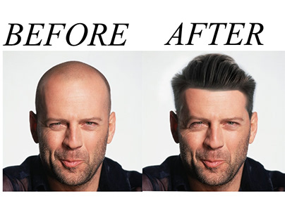 Hair Transplant/Bald Head