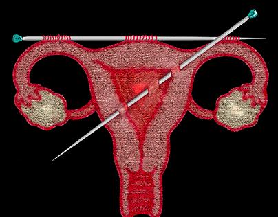 Women's Rights - Strajk Kobiet