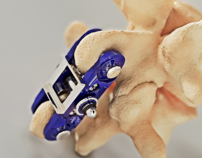 OsteoMed Spine Clamp