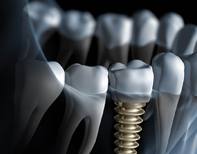 As per the overview of the global Dental implants and p