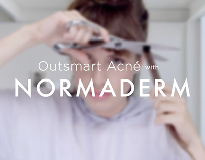Outsmart Acne with Normaderm