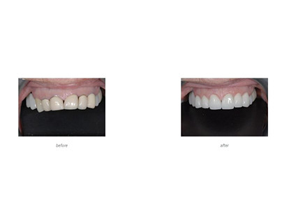 To improve your smile with dental bridges