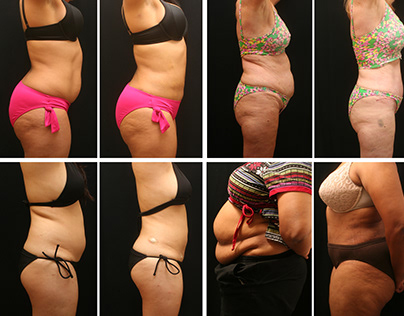 Best Laser Liposuction Services in Baltimore MD area