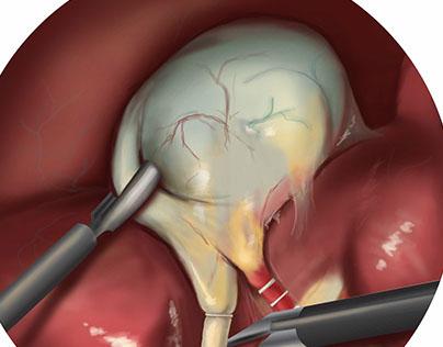 Laparoscopic cholecystectomy (gallbladder removal)