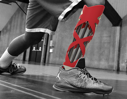 APEX: High-Performance Basketball Prosthesis