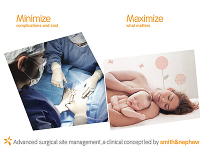 Smith and Nephew surgical site management