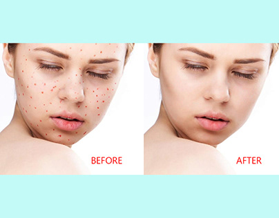 Photoshop Basic Skin Retouch