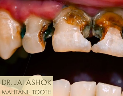 Dr. Jai Ashok Mahtani, Nigeria- Tooth Decay/Cavities