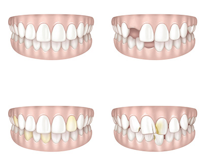 Dentition illustrations