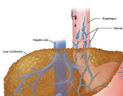 Esophageal varices