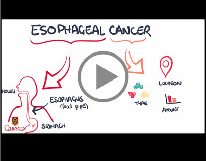 Explainer Video | What is Esophageal Cancer ? (Pt 1)