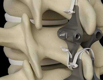 Orthopedic Renders - Instrumental