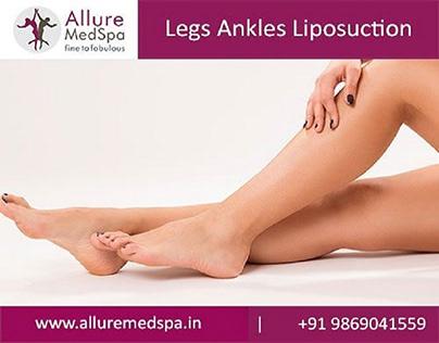 Ankles Liposuction Surgery in Mumbai