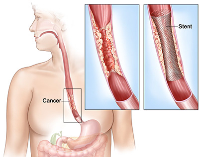 Frequently Asked Questions about Esophageal Cancer