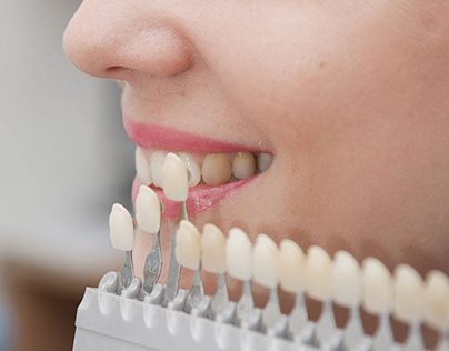 Know About Tooth Cavities