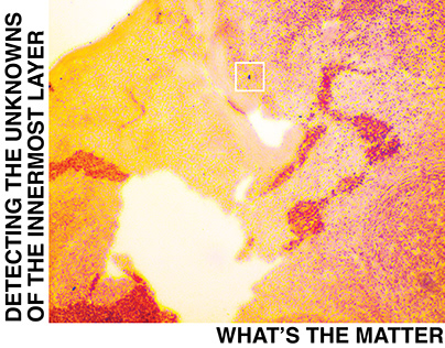 What's the Matter (2019)