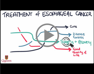 Explainer Video | Esophageal Cancer Treatment (Pt 2)