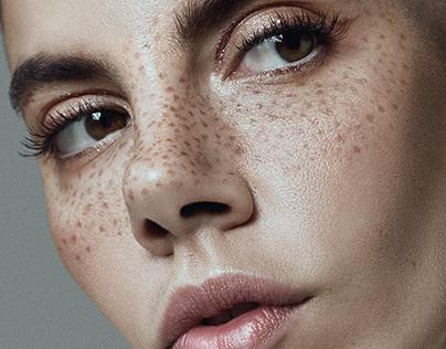 Freckles / Fashion