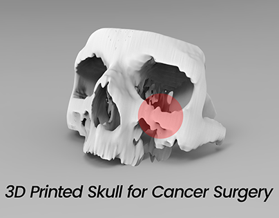 3D Printed Skull for Cancer Surgery