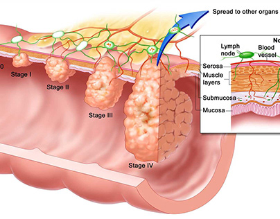 Brachytherapy for Esophageal Cancer