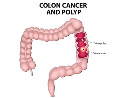 COLON CANCER : CAUSES, SYMPTOMS AND TREATMENT
