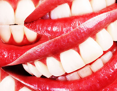 Direct-to-consumer aligners are filling a niche, but on