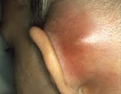 Mastoiditis and Its Treatment