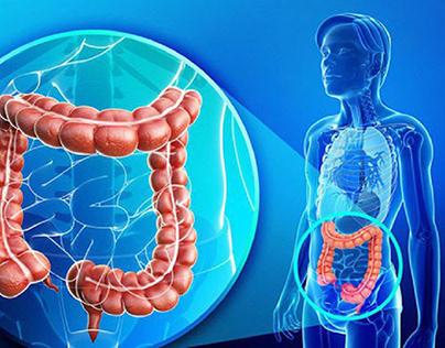 Hiểu đúng về nguyên nhân, triệu chứng hội chứng ruột kí