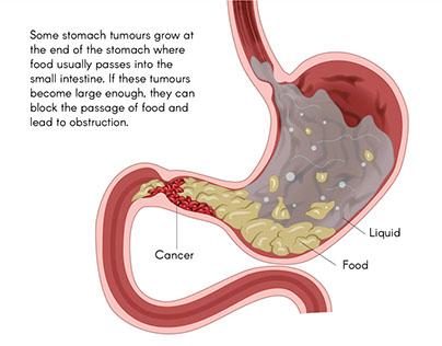Gastric Cancer Illustrations