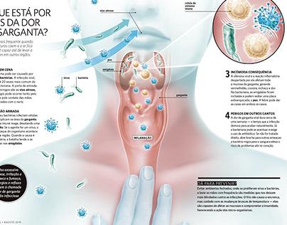 Dor de garganta - Revista Saúde!