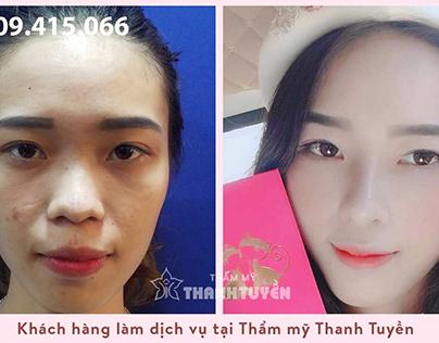 Hình ảnh khách hàng trước và sau phẫu thuật nâng mũi