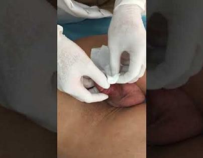 Thời gian tháo băng cắt chỉ sau cắt bao quy đầu