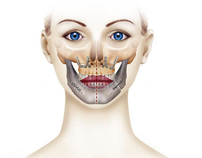 Medical Illustration. Orthognatic surgery