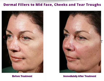 Dermal Fillers in Camberwell – Timeless Anti Ageing